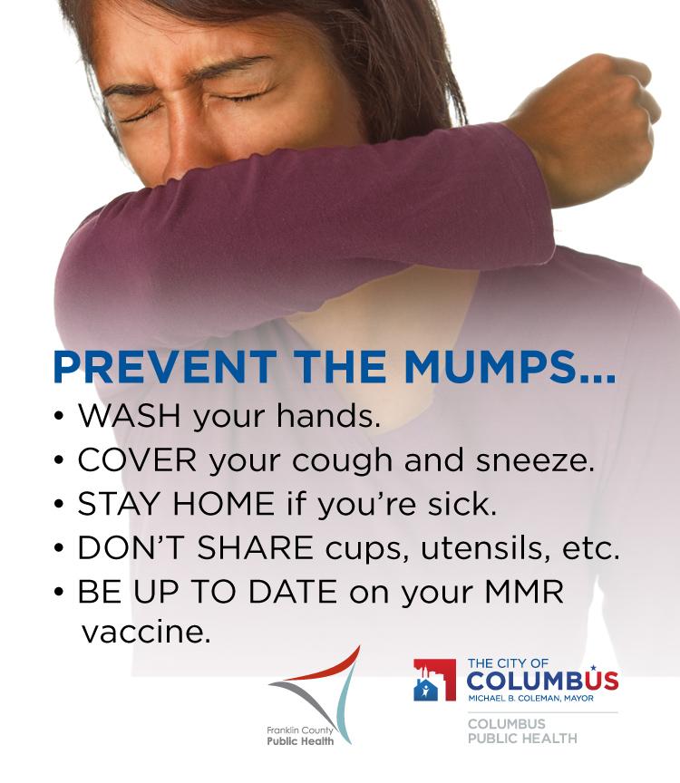 Mumps Prevention Materials